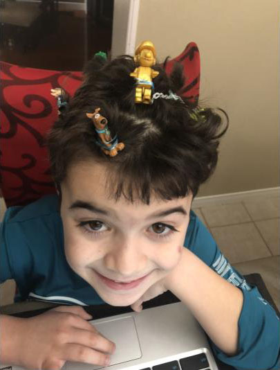Boy with hair pins